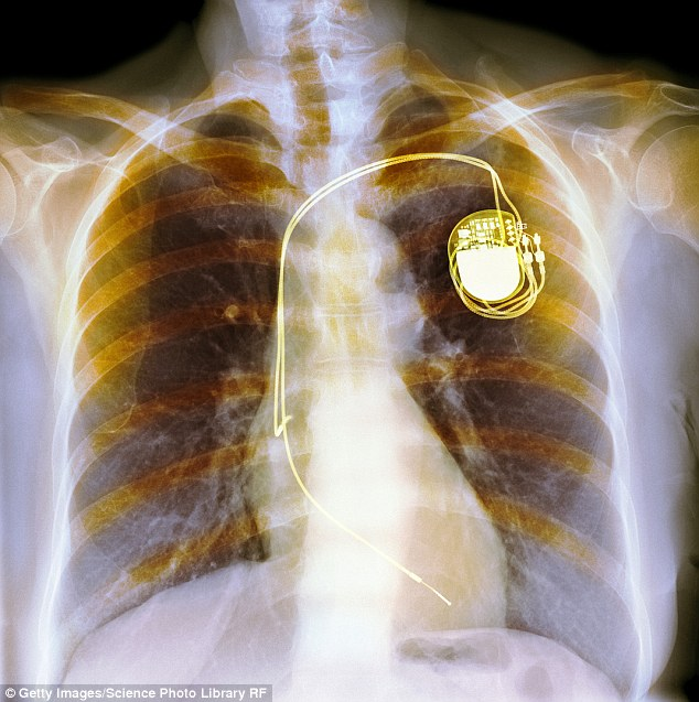 After almost 20 years of living with a pacemaker, Nina Adamowicz decided she no longer wanted the device that was keeping her alive