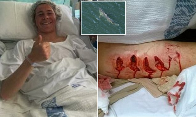 Savaged by a Great White: Gouge on the leg of a surfer, 17, shows how close he came to